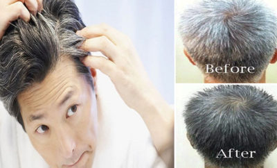 How Mustard Oil Help For Grey Hair To Turn Black