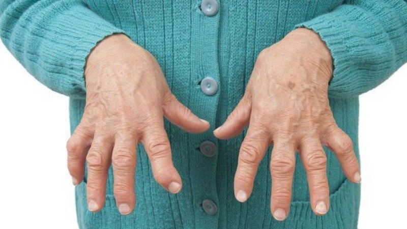 Rheumatoid Arthritis Symptoms And Causes