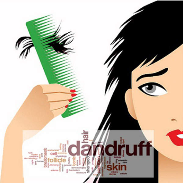 can dandruff cause hair loss