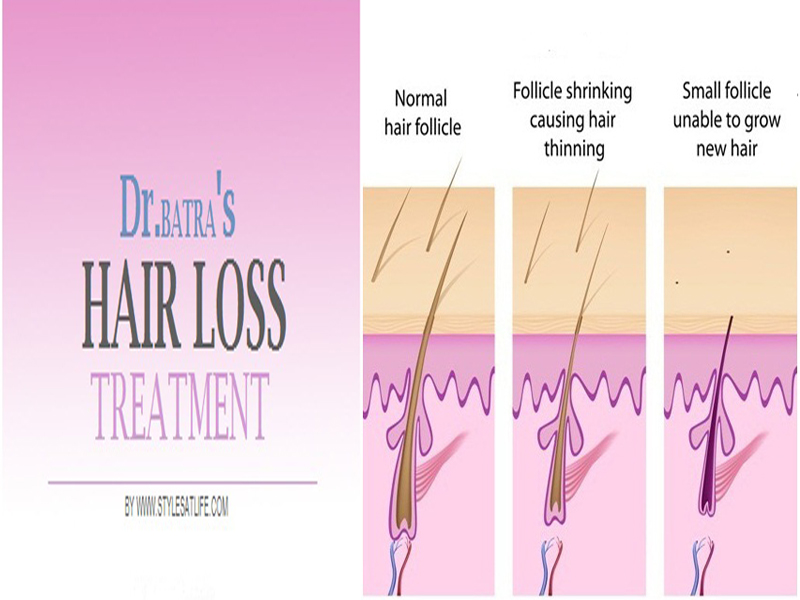 dr batras hair loss treatment