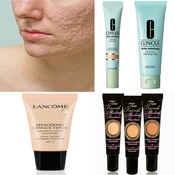 Concealers For Acne Scars