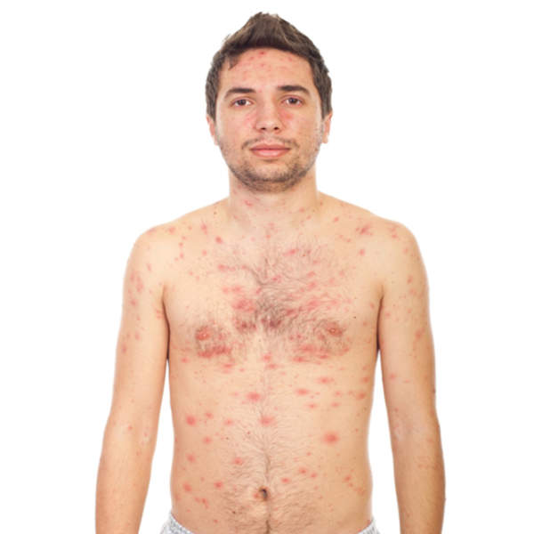 Chicken pox symptoms and causes