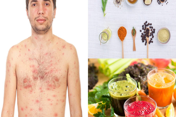 Home Remedies for Chicken Pox Treatment