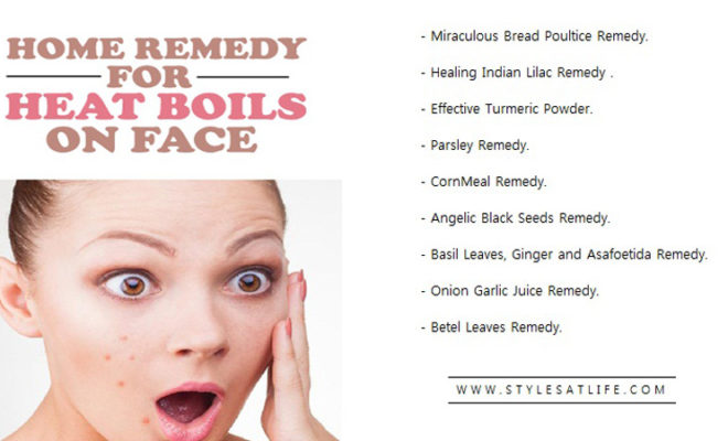 Home remedies for heat boils on face