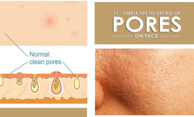 homeremedies to reduce pores on face