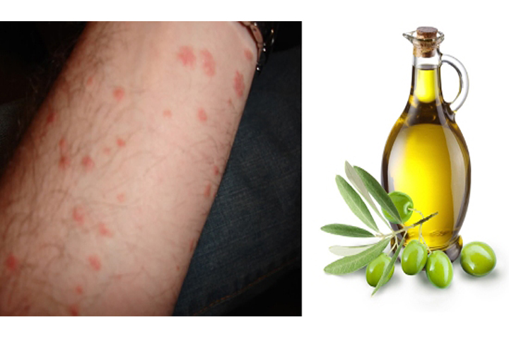 How to Use Olive Oil for Psoriasis