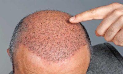 hair transplant centers in kerala