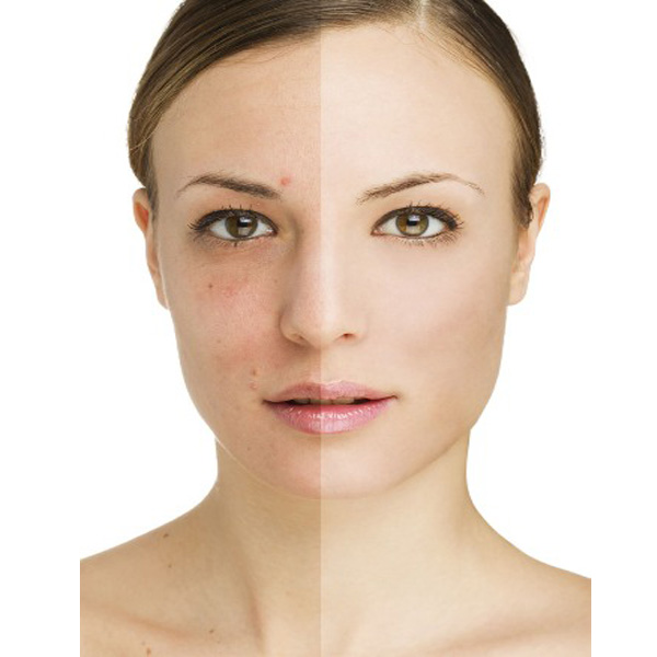 how to get rid of blemishes1