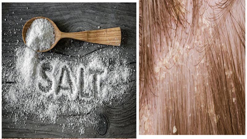 How to Use Salt For Dandruff? 5 Ways That Work | Styles At Life