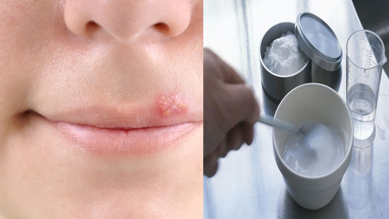 Amazing Home Remedies for Fever Blisters on Mouth and Lip
