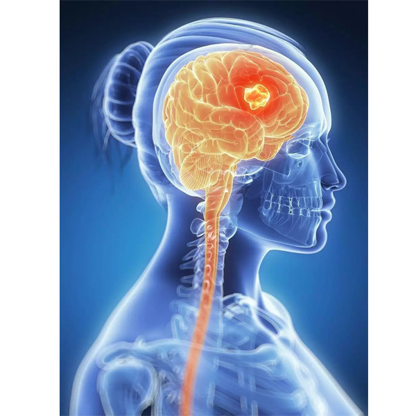 brain cancer causes and symptoms