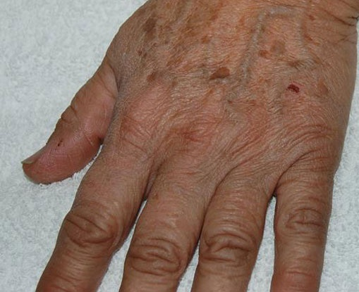 How to Get Rid of Wrinkles on Hands 6