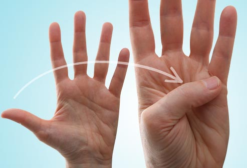 Exercise for Winkles on Hands