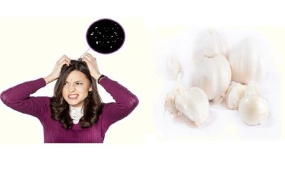 Garlic For Dandruff