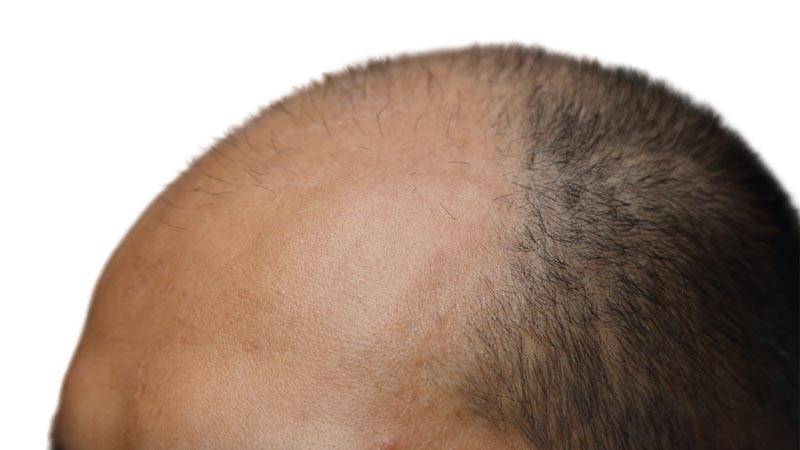 Hair Transplant Centers In Jaipur