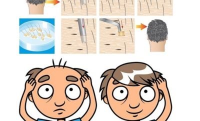 Side Effects of Hair Transplantion
