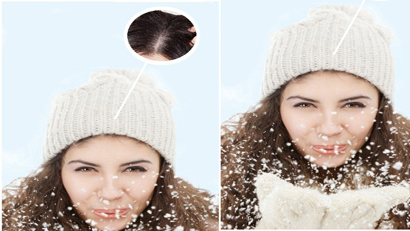 Prevent Dandruff In Winter