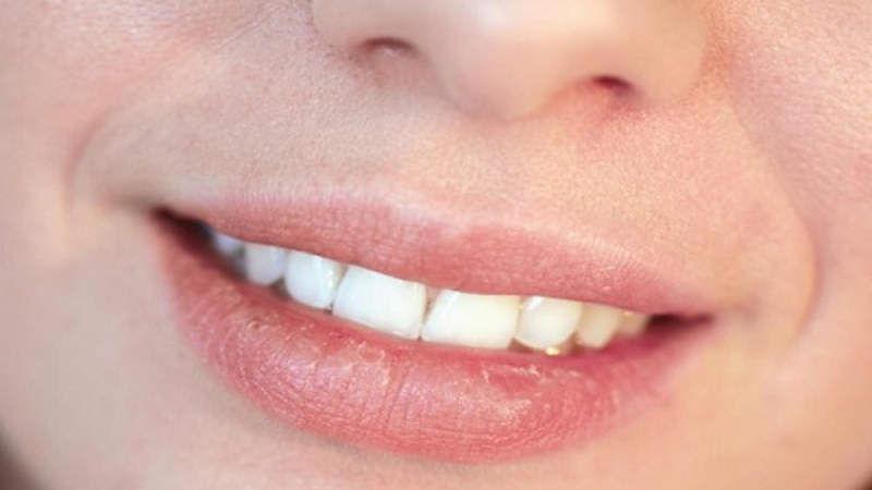 Remove Tan From Lips