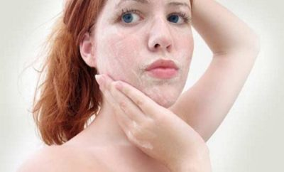 how to get rid of dead skin cell