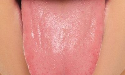 How To Treat Pimples on Tongue? | Styles At Life