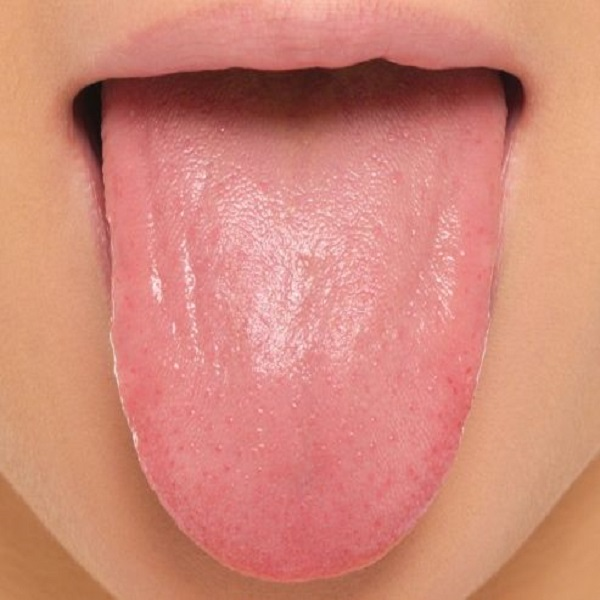 How To Treat Pimples on Tongue