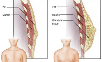 What is Gynecomastia (Male Boobs)
