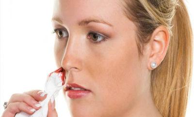 Nose Bleeding During Pregnancy