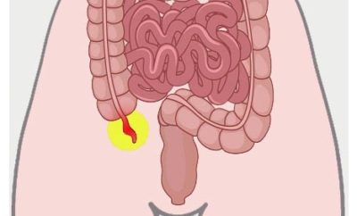 what causes and symptoms of appendicitis and their treatments