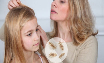 To Get Rid of Lice on Head