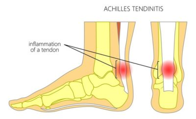 home remedies for Achilles Tendon Pain