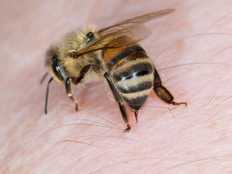 10 Best Home Remedies For Bee Stings | Styles At Life