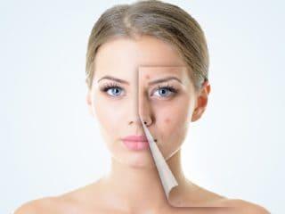 Pimple on lip line home remedies